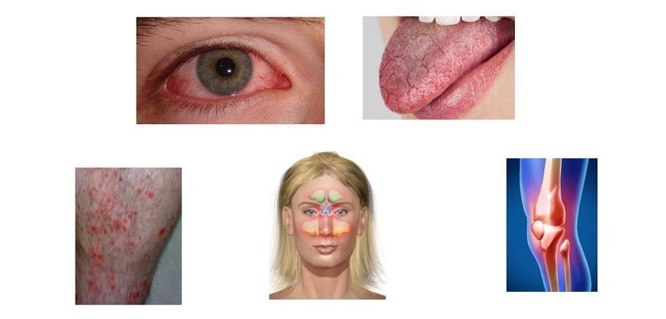 Sindromul Sjögren – cauze, simptome, diagnostic și tratament