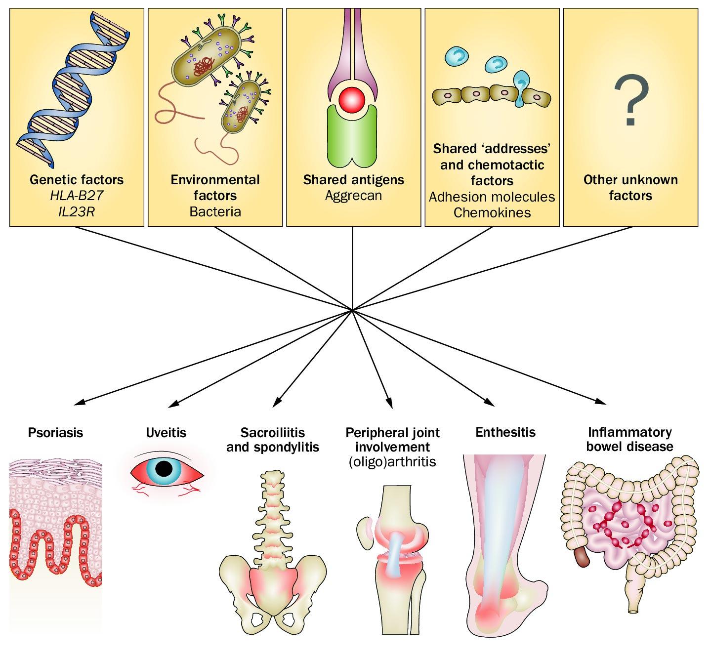 Spondilita anchilozantă – cauze, simptome, diagnostic